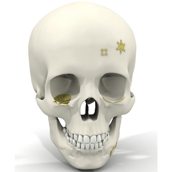 Micro titane Chirurgie du tiers-moyen Chirurgie du tiers-supérieur Neurochirurgie Pré-implantaire