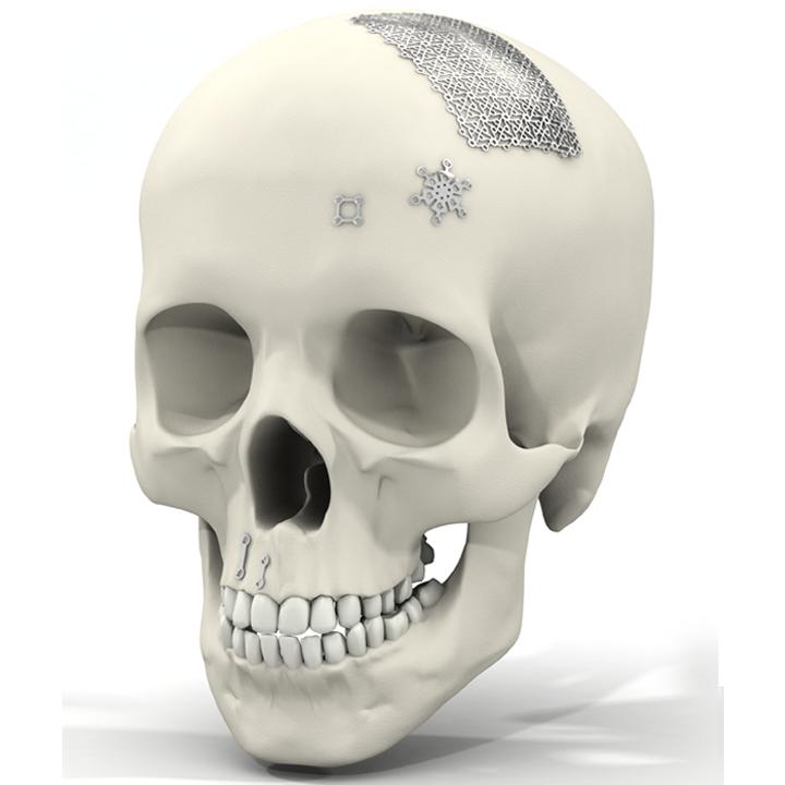 Middle titane Chirurgie du tiers-moyen Chirurgie du tiers-supérieur Neurochirurgie Pré-implantaire